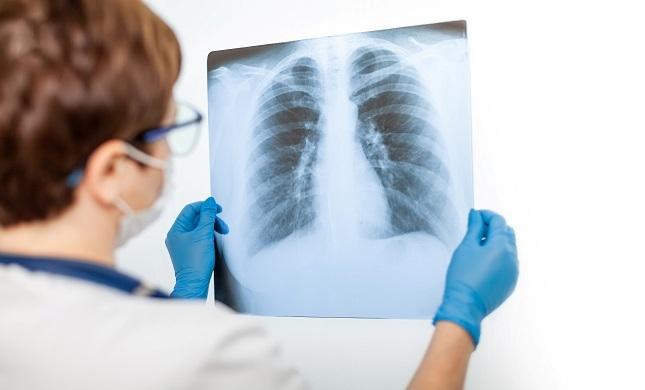 Obavijest o organizaciji rada Odjela za kliničku radiologiju Opće županijske bolnice Pakrac i bolnice hrvatskih veterana